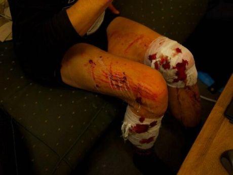 У одного из журналистов разорвалась в ногах граната с газом от милиции. Фото @Dbnmjr на ЄвроМайдан