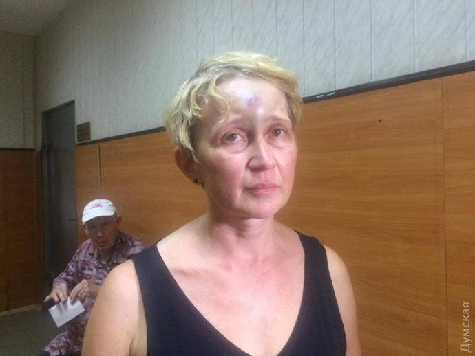 ВОдессе избили участницу экспертной комиссии «Группа 2мая»