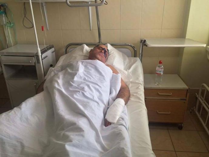 ВОдесской области безумно избили руководителя райсовета