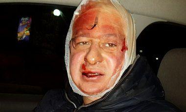 Олександр Перевозник постраждав під час розгону людей Беркутом на Банковій. Фото ЛігаБізнесІнформ