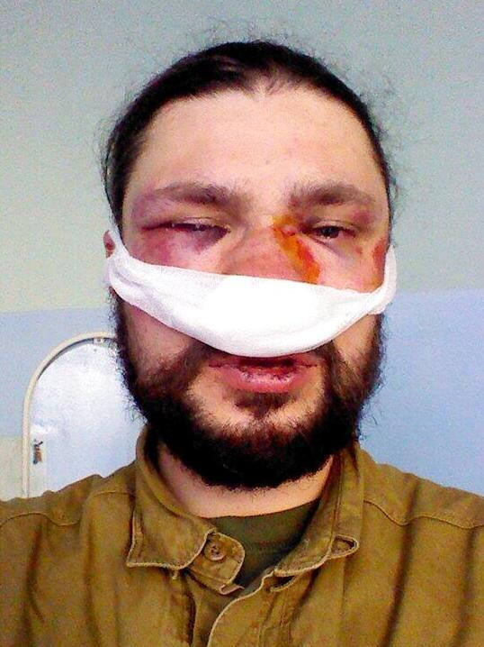 Максим Требухов в Александровской больнице после избиения, февраль 2014 года