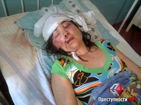 Ірина Крашкова, згвалтована й побита працівниками міліції у Врадіївці