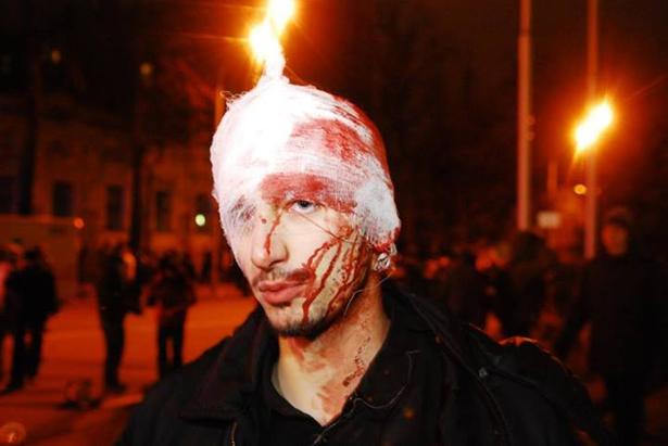 Постраждалий під час дриаки з Беркутом біля адміністрації президента. Фото Ярослава Дебелого