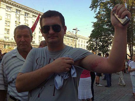 Роман Чернега, побитый в Киевсовете. Фото из Facebook Геращенко
