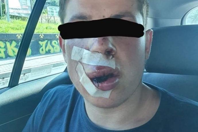 У Польщі жорстоко побили студента, який сказав, що з України