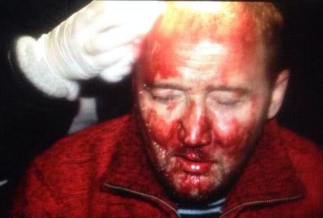 Під час розгону мітингу на Банковій 1 грудня чоловікові розбили голову. Фото Мустафи Найєма