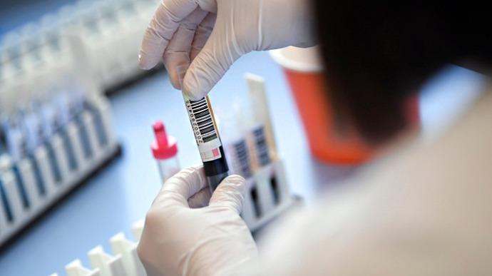 На Херсонщині виявили лише одного нового хворого на коронавірус ...