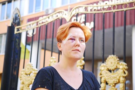 Избитая в субботу лидер Femen Анна Гуцол