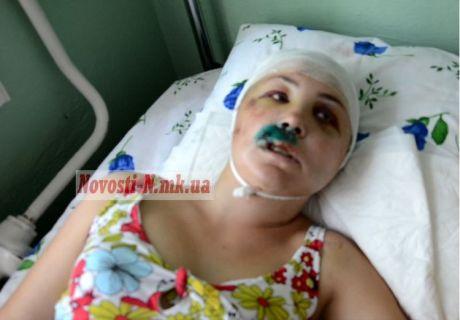 Ирина Крашкова выжила после изнасилования сотрудниками милиции во Врадиевке