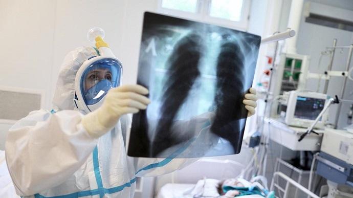 В Україні виявили 4 576 нових випадків коронавірусу